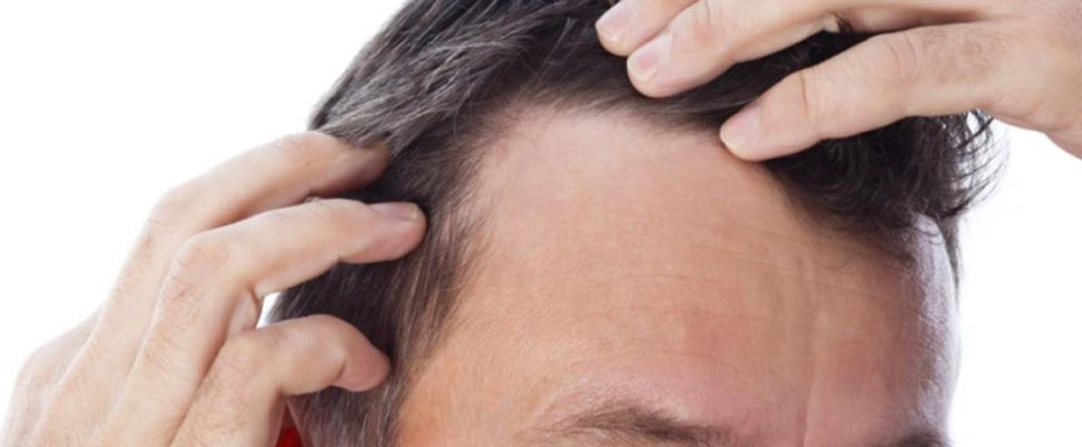 perte de cheveux post op