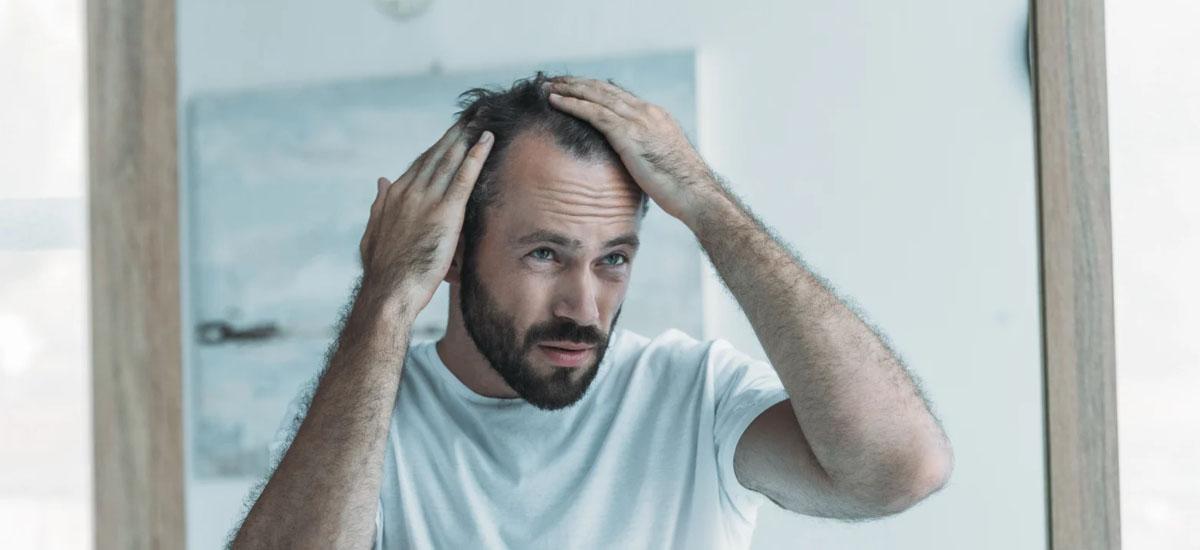 Traitements médicamenteux contre la chute de cheveux